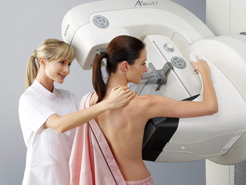 Mamografia: Por que ela é tão importante?