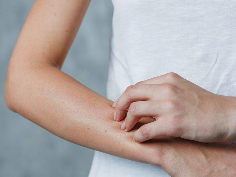 Alergias: conheça os tipos mais comuns e como tratá-las