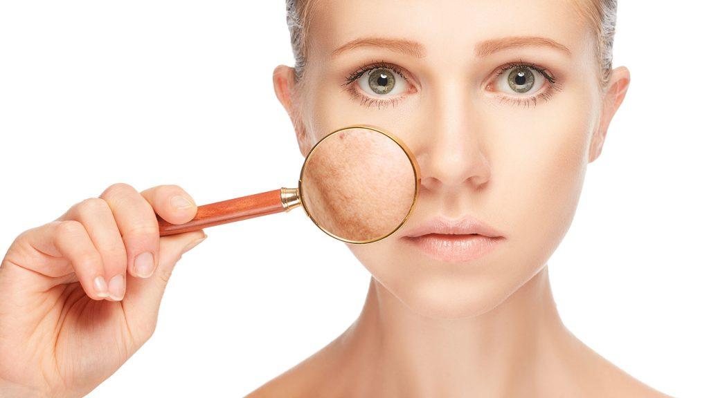 Las manchas de sol en la piel son producidas por el fotodaño