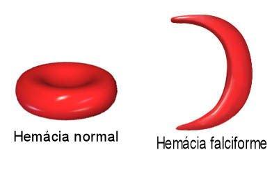 hemofilia só biologia