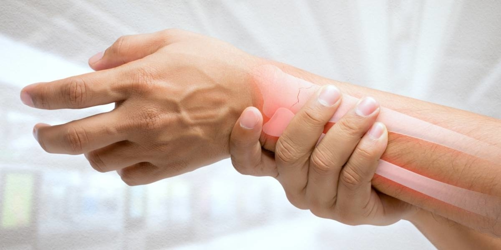 artritis reumatoridea