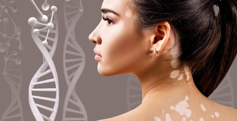 tipos de manchas en la piel