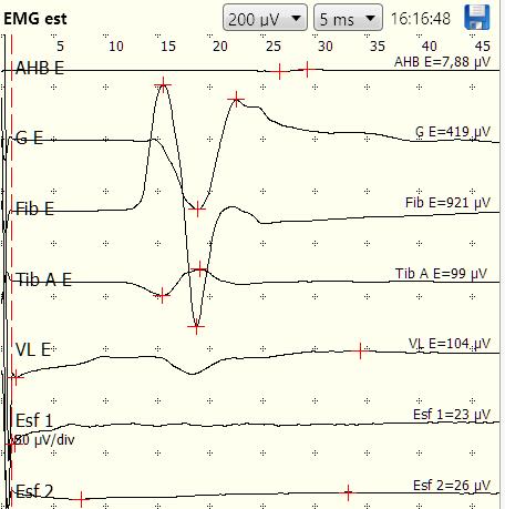 EMG estimulada