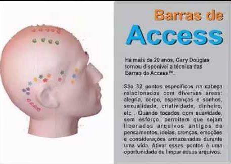 (Presencial)PACOTE  5 sessões - BARRAS DE ACCESS