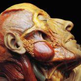 Lymphatic Phlegm – Show-Off Cadavers - The Anatomy Of Self Display - Digipack