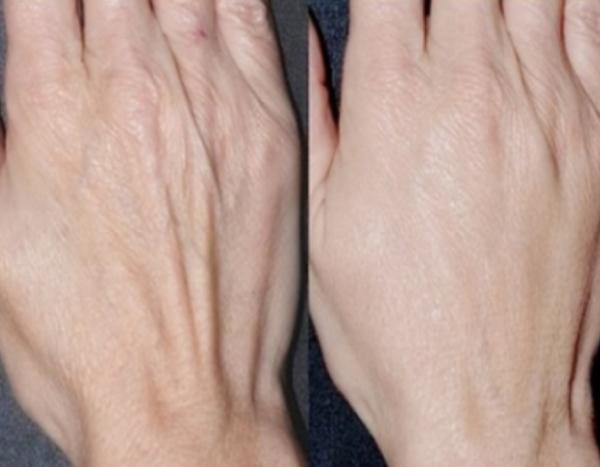 Resultado de imagem para mãos envelhecidas
