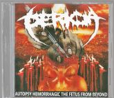 CDr - Pericia – Autopsy Hemorrhagic The Fetus From Beyond