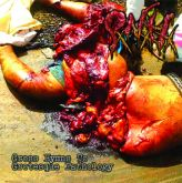 Pancreatite Necro Hemorragica - Gross Hymns to Grotesque Pathology