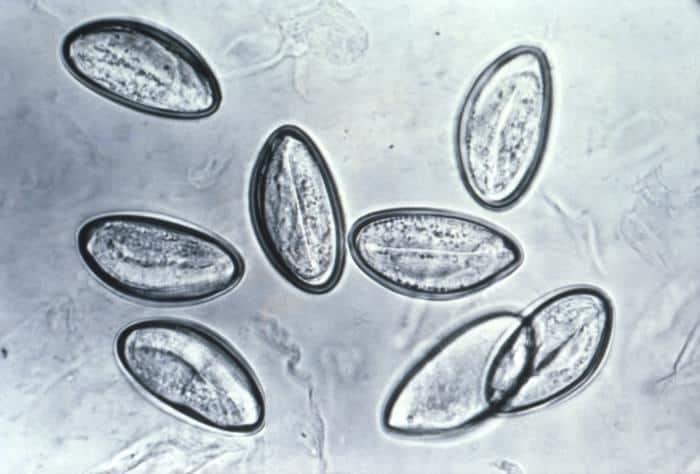 Ovos de Enterobius vermicularis.