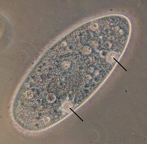 Célula de um Paramecium mostrando seus vacúolos contráteis.