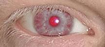 Olho de um Albino.