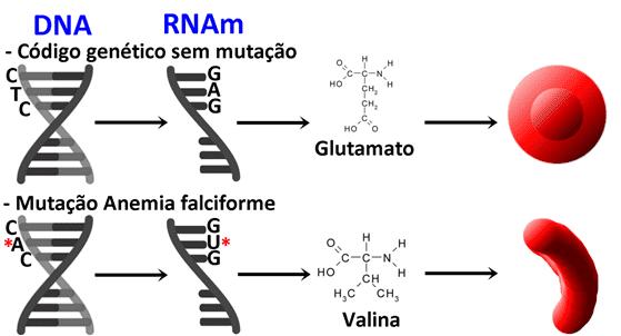 Esquema da Mutação que acarreta a patologia anemia falciforme. Em um código genético sem mutação, o DNA contém um trecho de citosina, timina e citosina (CTC) que, ao ser transcrito, gera o códon GAG, que é correspondente ao Glutamato. Este é inserido na cadeia polipeptídica da hemoglobina, o que gera uma hemácia saudável. Em indivíduos com anemia falciforme, O DNA sofre uma mutação e o trecho passa a ser CAC. Com uma troca da timina pela adenina, esse trecho é transcrito em um códon GUG, que é correspondente a Valina. Esta é incorporada à hemoglobina, tornando-a mutada e alterando toda a conformação da hemácia, que fica no formato de foice, não tão eficaz no transporte de oxigênio.