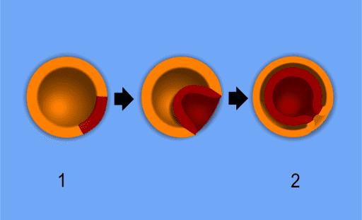 Esquema de formação da Gástrula: 1-Blástula; 2-Gástrula; Laranja: Ectoderma; Vermelho: Endoderma; Marrom: Mesoderma.
