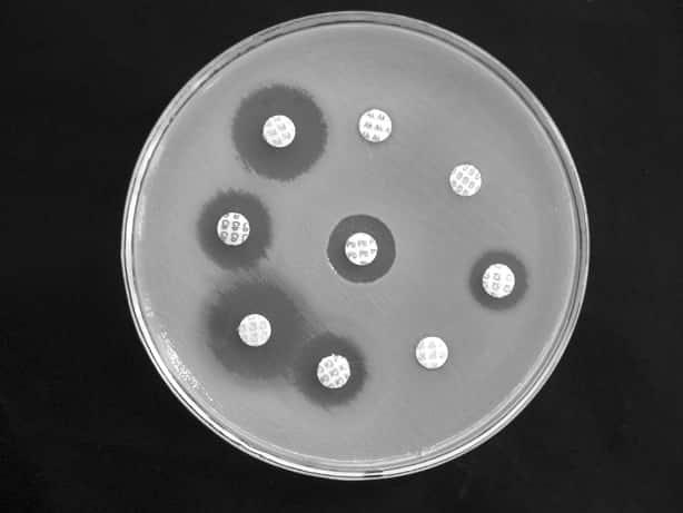 Exemplo de um antibiograma mostrando a capacidade antibiótica de diversas substâncias.