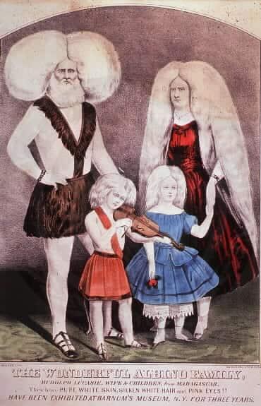 Pintura do século XIX mostrando uma família de albinos.