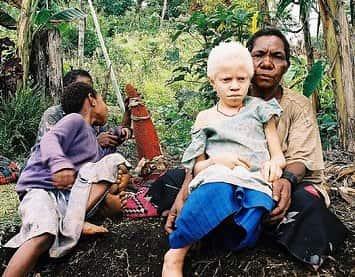 Garota Albina da Nova Guiné.