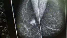 Radiologia - Venda de Mamógrafo Barato