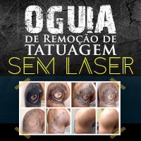 Como Apagar Uma Tatuagem Sem Laser
