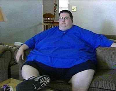 Cara perde 180 kg e recupera a forma humana