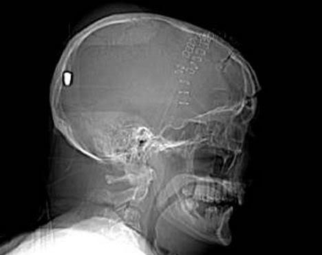 O mistério da bala no cérebro