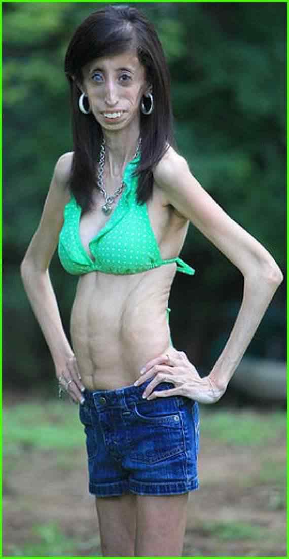 A bizarra mulher que precisa comer a cada 15 minutos para não morrer