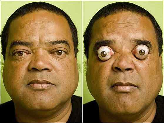 Pessoas que estufam os olhos