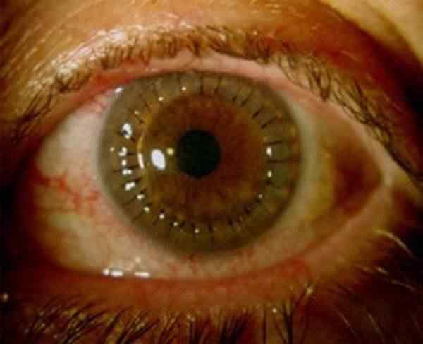 """""""Tatuagem"""" laser no olho? Só faltava essa..."""