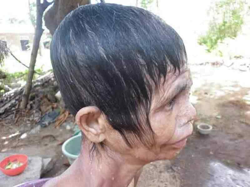 A bactéria comedora de gente ataca no Sri Lanka