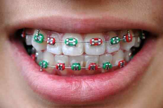 Fake-braces-trend4-550x365