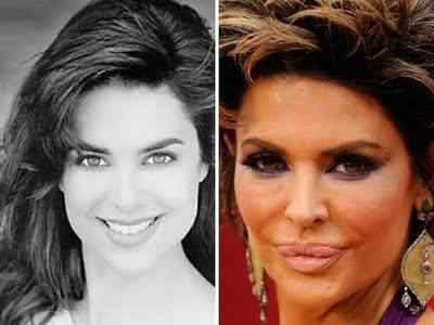 Lisa-Rinna-Plastic-Surgery-Before-After