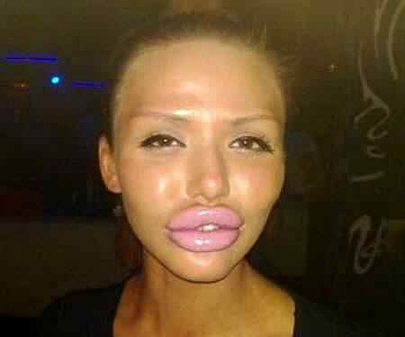 Ugly-Lips-Women-FAIL