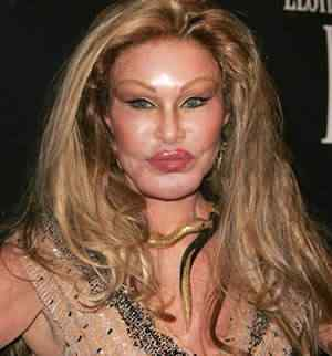 images-plastic-surgery-gone-wrong-i14