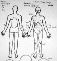 O relatório descreve: fratura das costelas, 1 e 2, 8, 9 e 10, lateralmente à esquerda; fígado rompido; baço rompido; pulmões foram penetrados por costelas quebradas.       (Relatório post-mortem de G . Jinadasa 10/04/1985