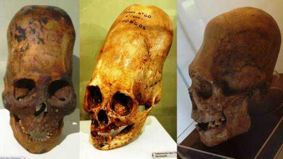 cranios-Paracas-Skulls-Ica-Museum-inca