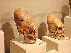 paracas_skulls