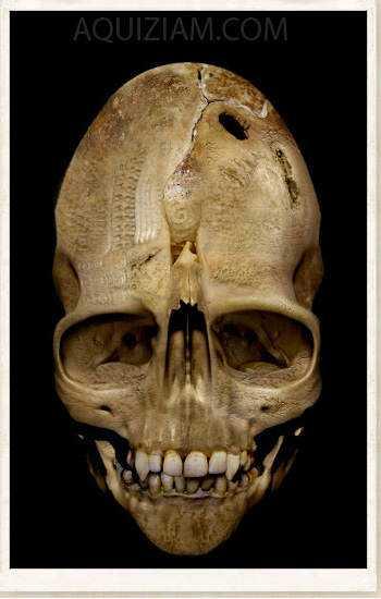 weird-skull