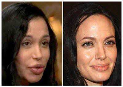 nadya-suleman-before-and-after-plastic-surgery