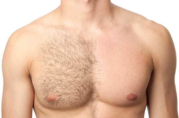 depilacao-masculina-depyl