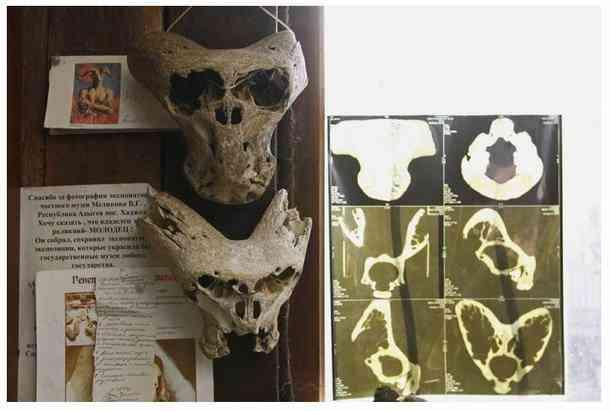 ady7 O mistério dos crânios bizarros descobertos nas montanhas da Russia