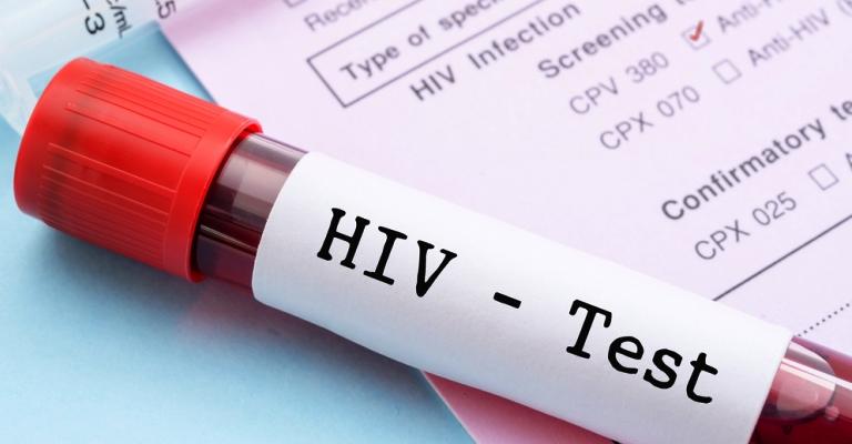 HIV: 2,5 milhões de pessoas são infectadas por ano no mundo