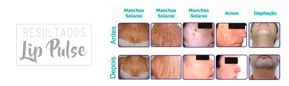 resultados do lip pulse, antes e depois lip pulse, resultados lip pulse advice
