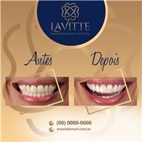 Lavitte Odontologia e Estética, Web e Digital, Odonto