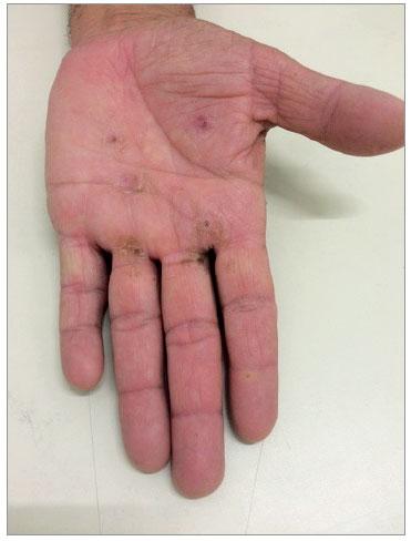 aco hand irritation treatment cream