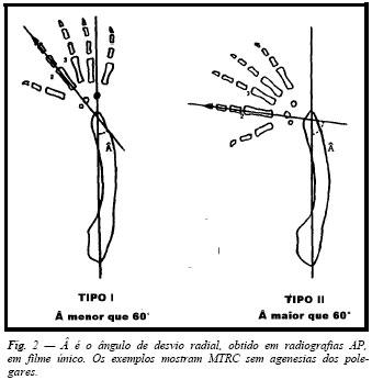 agenesia radial definida
