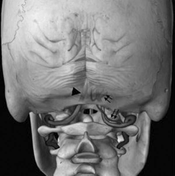 agenesia arco posterior atlas bone