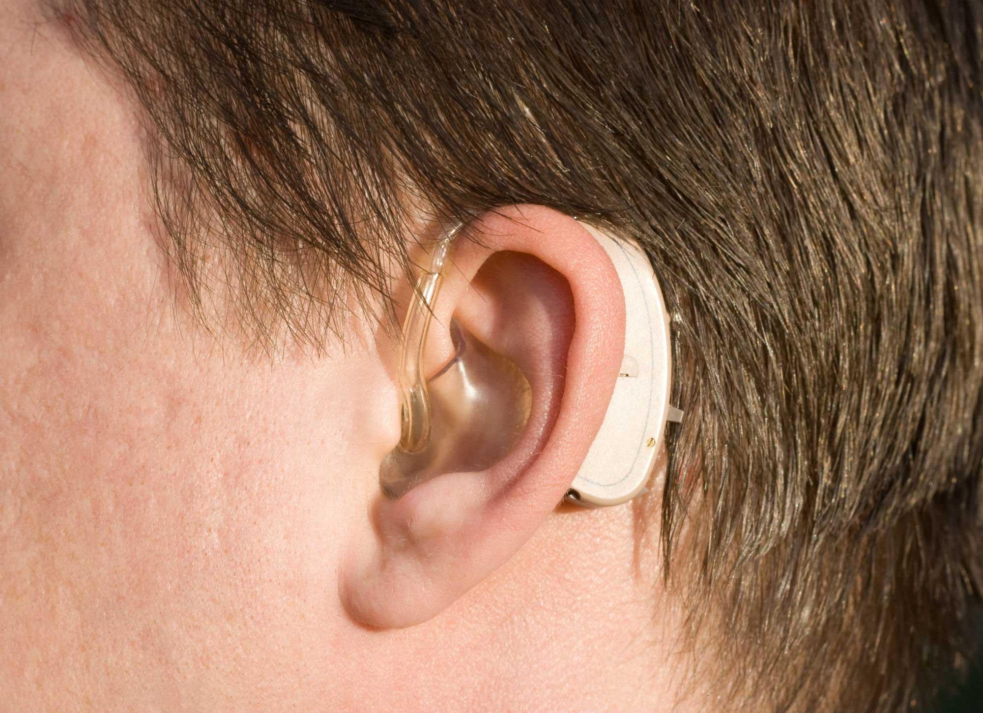 quanto-tempo-dura-aparelho-auditivo