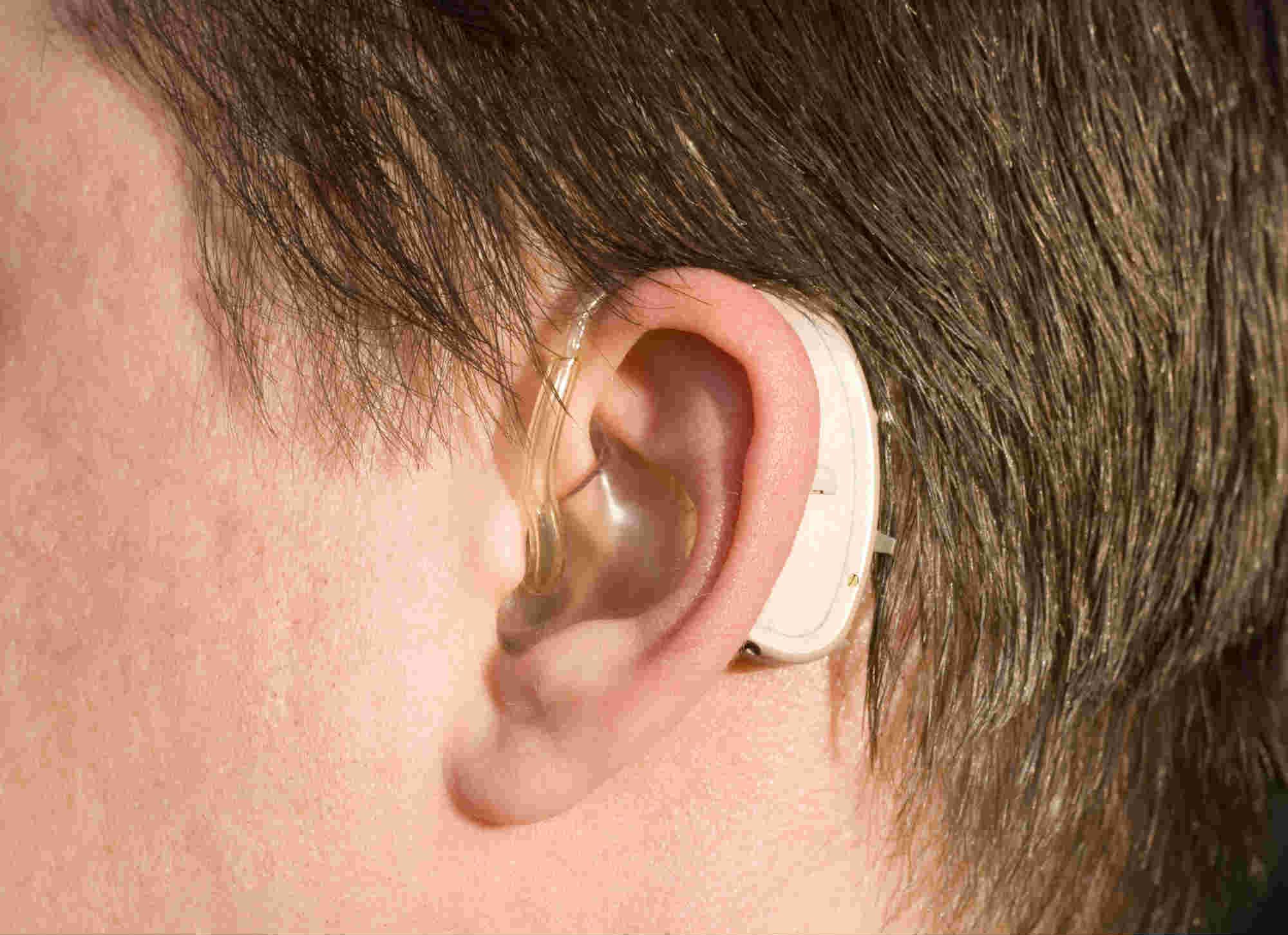 porque-nao-ter-vergonha-usar-aparelhos-auditivos