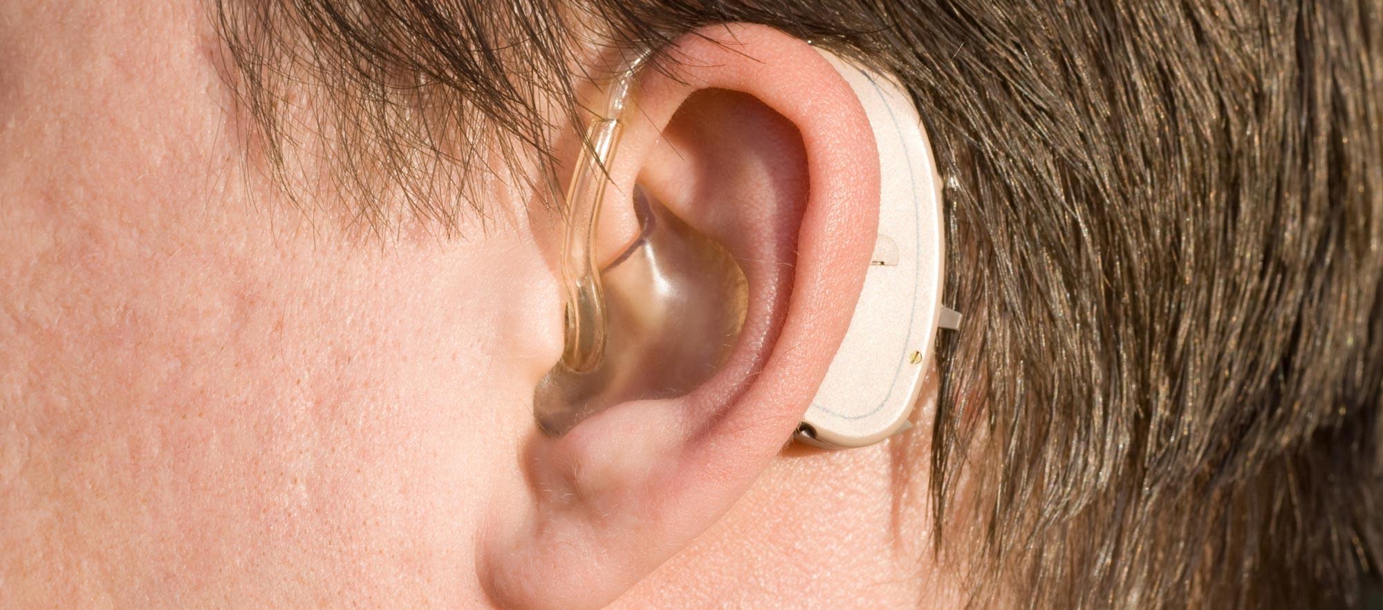 aparelho-auditivo-pecas