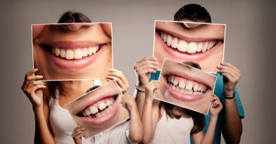 seguro-odontologico-como-onde