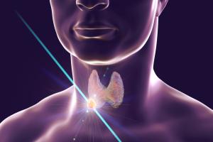 Nódulo de tireoide e disfunções tireoidianas com Dra. Rosália Padovani